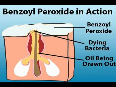 Image via NYC Benzoyl Peroxide